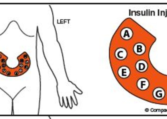 Insulin Injection Site Rotation Label - Shop | Compact ...